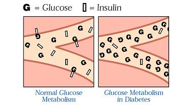 Bilderesultat for diabetes insulin